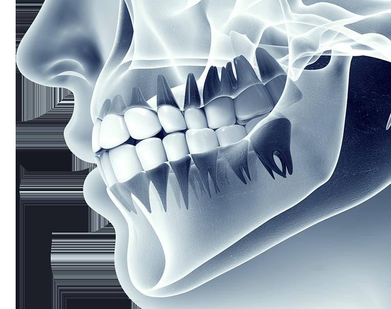 iStock_77097345_MEDIUM-dental-Xray